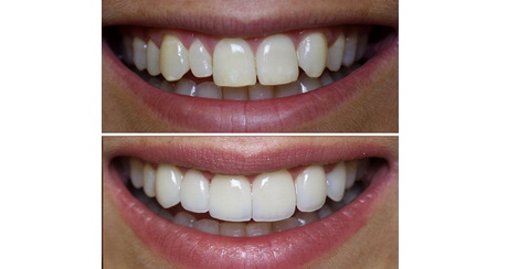 Get Quick Composite Veneers For a Beautiful Smile